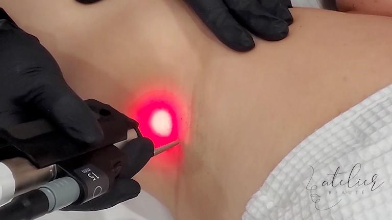 Atelier Beauté Laser
